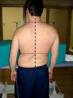 kralježnica pacijent i rehabilitacija