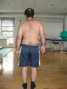 pacijent nakon operacije kralježnice - leđa i držanje 2